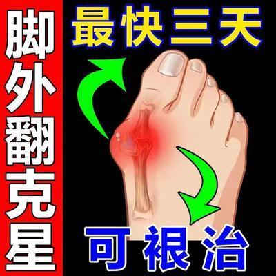 72806/【101%全愈】拇指外翻矫正器大脚拇指外翻脚趾重叠疼痛专用走珠器