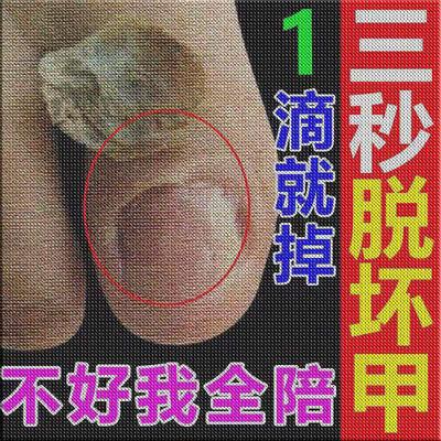 【永不復发】灰指甲特效根专用液冶灰甲增厚亮甲去除灰指甲抑菌液
