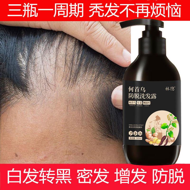 【真实生发案例】防脱生姜生发洗发水增发密发液控油去屑止痒露