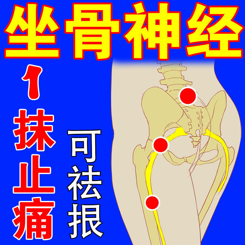 坐骨神经痛膏贴腰椎压迫神经引起屁股大小腿后外侧放射性疼痛麻木