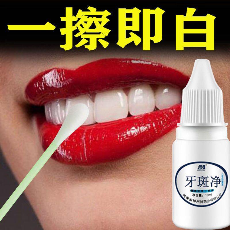 【不白全退】速效去黄牙烟渍茶渍牙垢牙斑净牙齿美白脱色剂洗牙粉