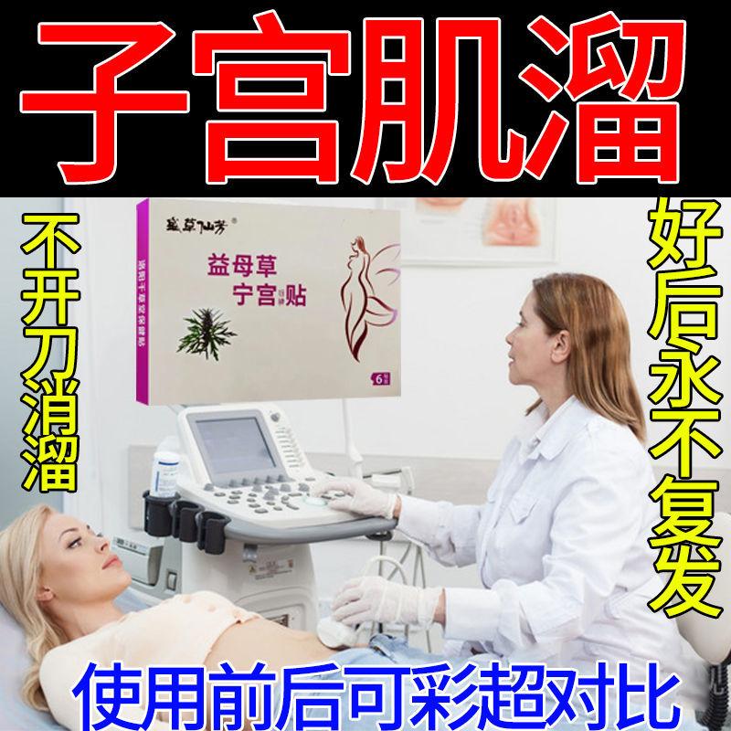 【升级版 女性子宫贴】子宫肌留贴子宫肿腺肌护理便利贴正品保障