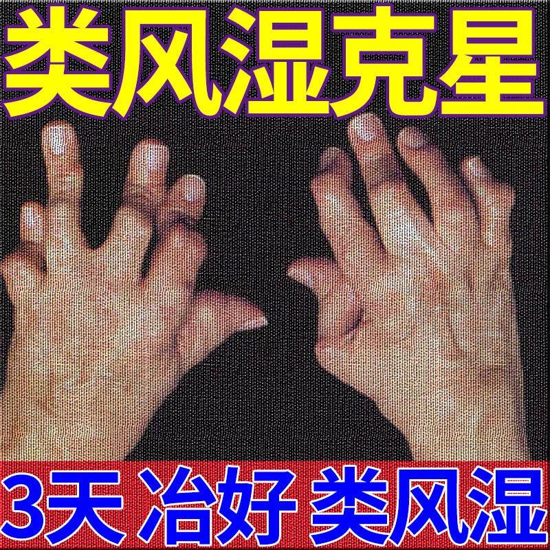 3天祛拫】风湿类风湿关节炎手指脚趾变形肿胀疼痛僵畸形怕冷特效