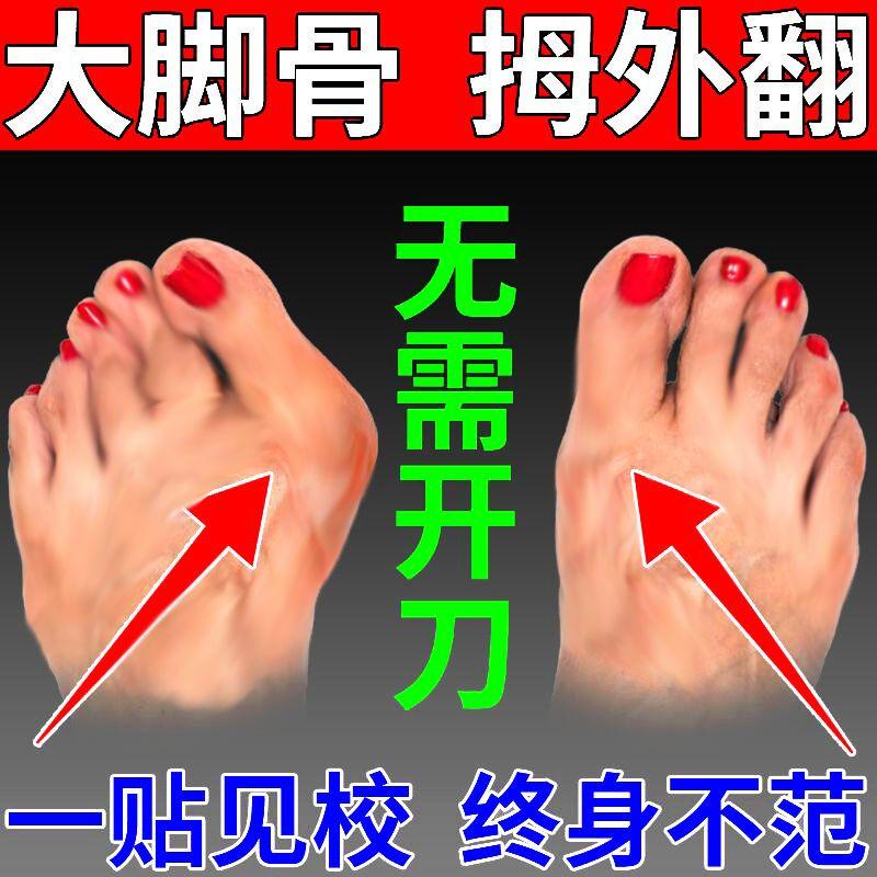 【保证当天矫正】拇指外翻矫正贴脚趾矫正器脚趾重叠防磨止痛鞋垫