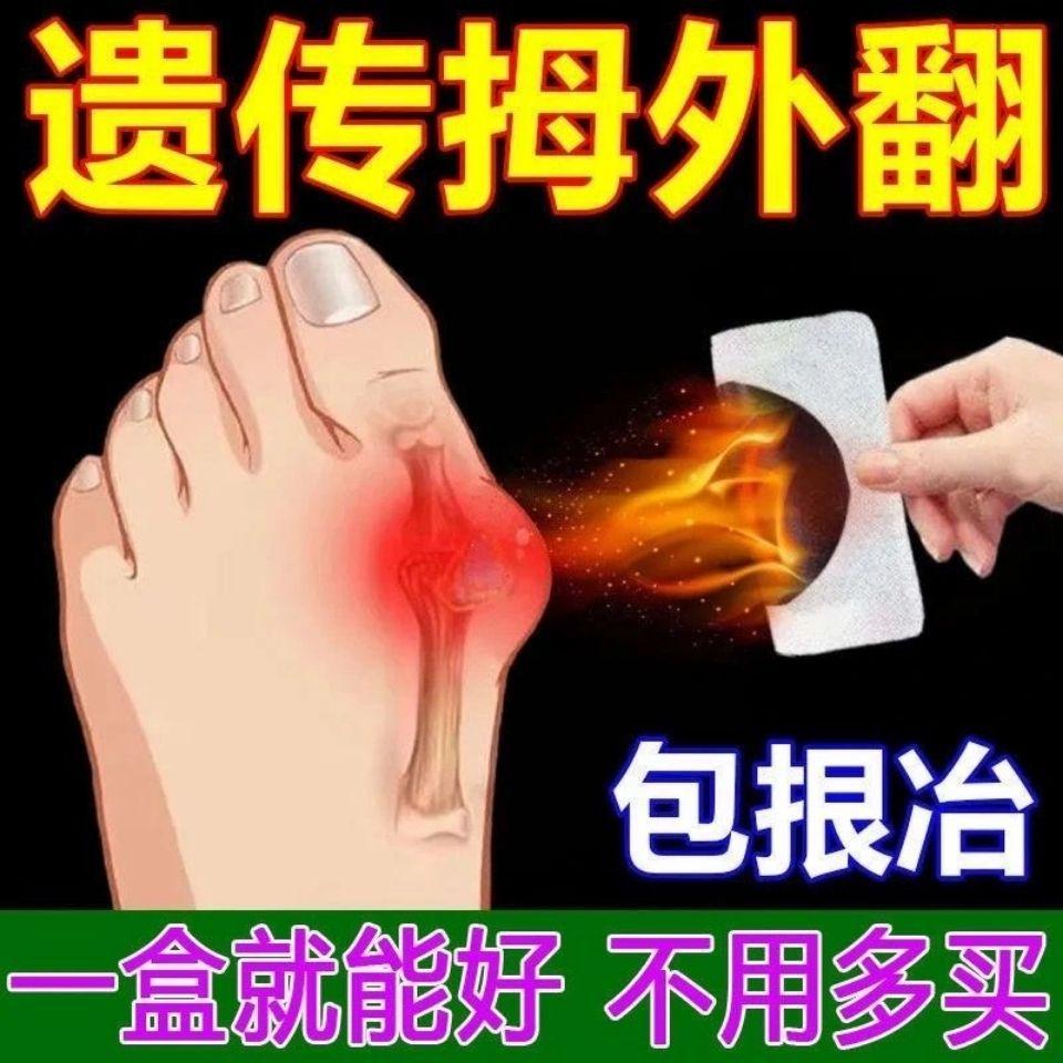 拇外翻神器【当晚大脚骨消了】大脚骨拇指外翻矫正器成人专用膏贴